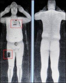 full-body-scan