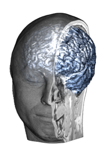 Brain_Cutout