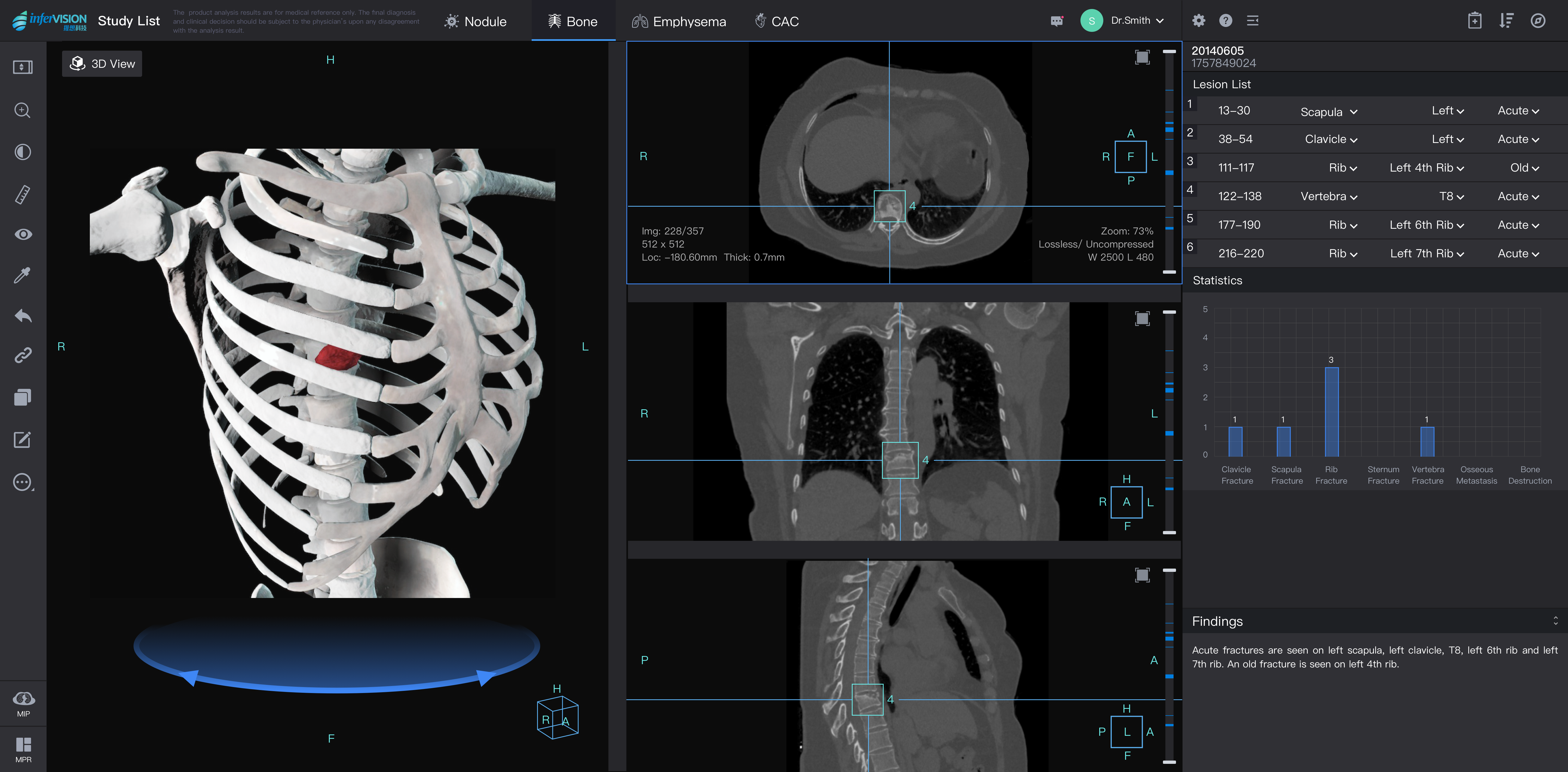 infervision medical imaging